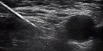 femoral nerve block - ultrasound podcast, Muscles