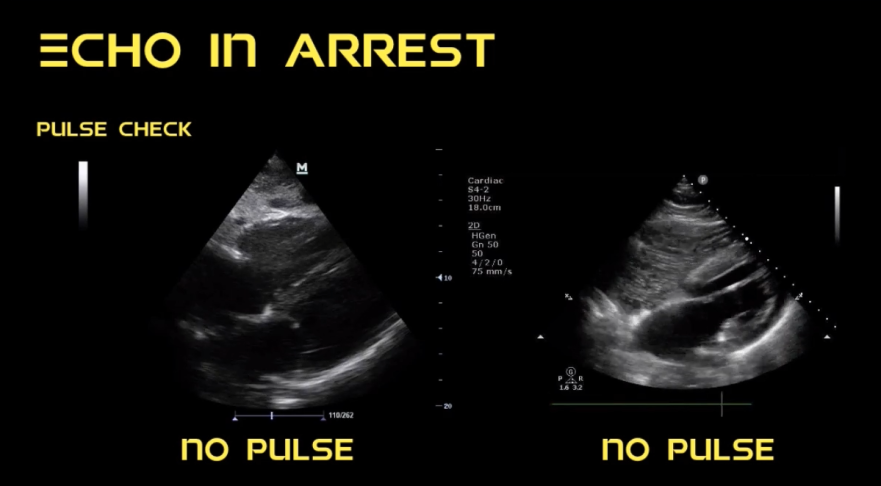 State of the Evidence Cardiac Arrest Echo. REASON trial with ...