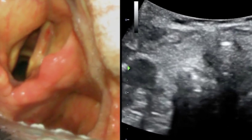 airway screen shot featured image_crop