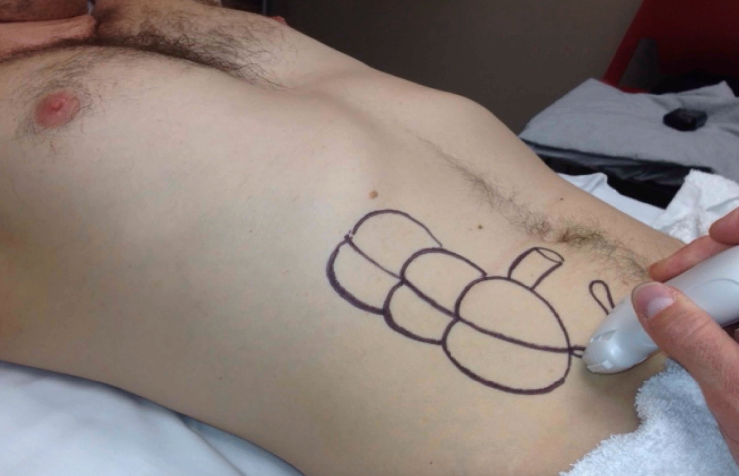 Appendicitis Ultrasound Reboot With Ultrasoundmd Turns Out