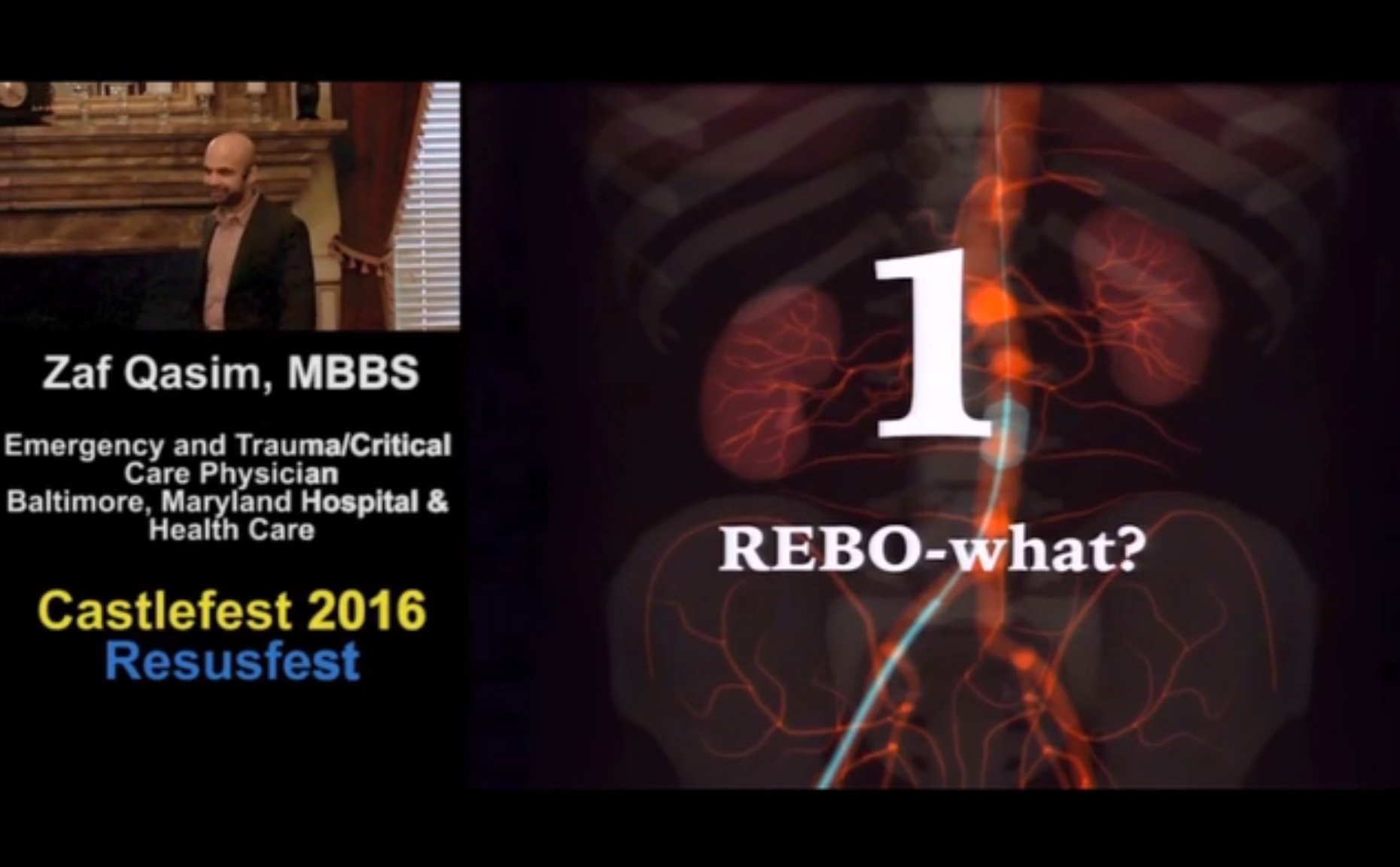 REBOA how to with @criticalcarenow and @emeddoc from Resusfest2016.  #FOAMED.  www.castlefest2017.com