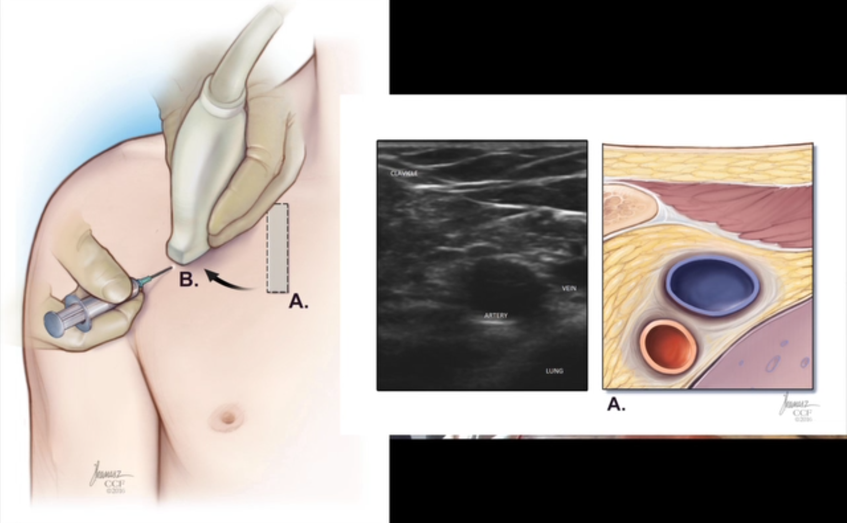 The PART method for US-guided subclavian CVC\'s with Mourad Senussi ...